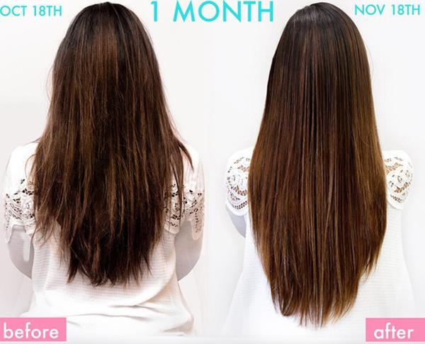 Vitamin cho tóc Hair vitamin
