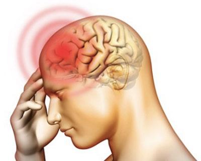 Bệnh viêm não mô cầu có nguy cơ lan rộng trong cộng đồng