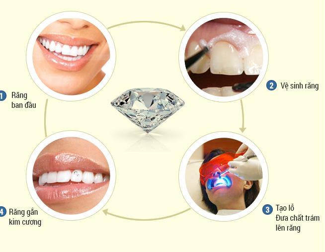 đính kim cương trên răng