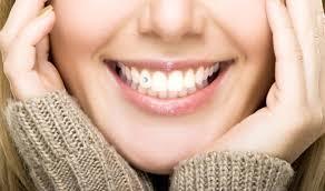Răng đính kim cương