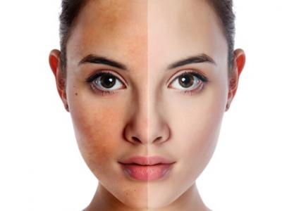 Collagen có dùng để trị nám trắng da không?