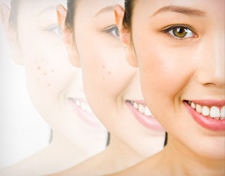 Tạm biệt vết thâm do mụn: Hai bước đơn giản để có làn da không tì vết!