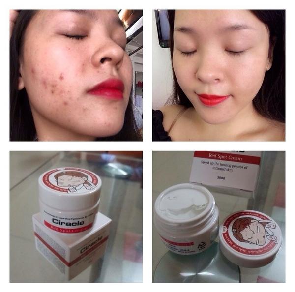 Kem Hỗ Trợ Giảm Mụn Ciracle Red Spot Cream 3