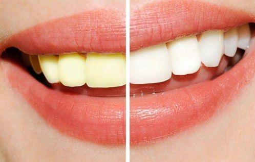 Quy trình tẩy trắng răng bằng Brite Smile Nha khoa Bally 1