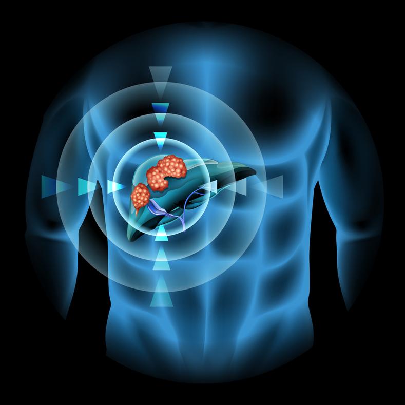 Gói tầm soát và phát hiện sớm ung thư gan - Vinmec / Liver cancer screening package