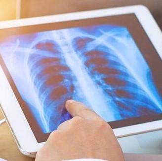 Tầm soát và phòng ngừa ung thư phổi - CIH / Screening and preventing lung cancer