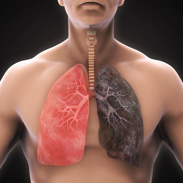 Gói tầm soát ung thư phổi - Vinmec / Lung cancer screening package