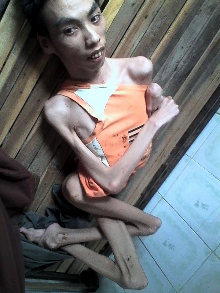 Hình ảnh Nạn Nhân Chất độc Màu Da Cam Dioxin Clb Tình