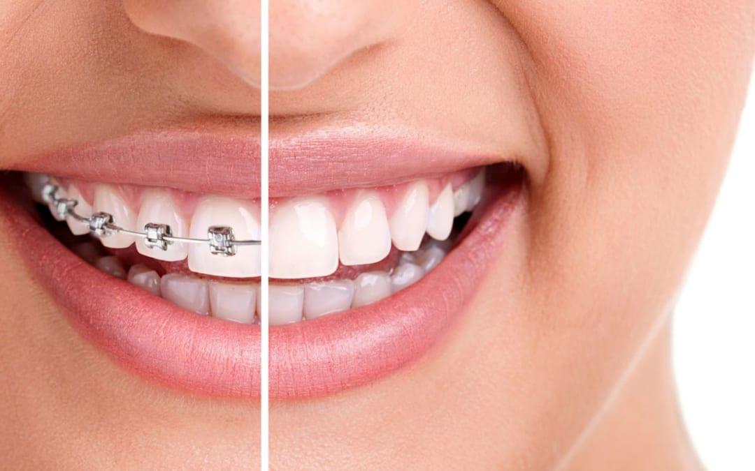 Khi nào cần phải niềng răng