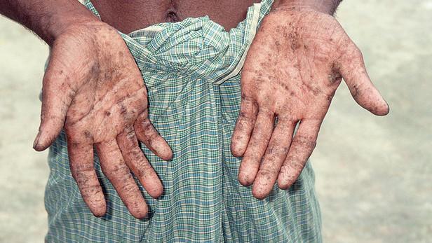 Làm sao để biết bạn đã nhiễm độc chì hay chưa?
