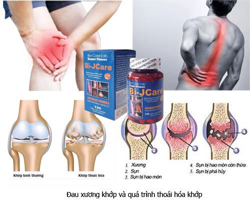 Bệnh xương khớp kiêng ăn gì để tốt cho bệnh