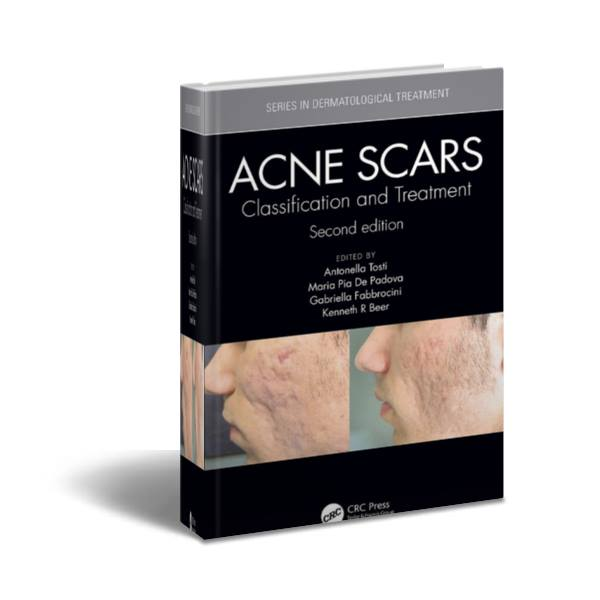ACNE SCARS:Classification and Treatment