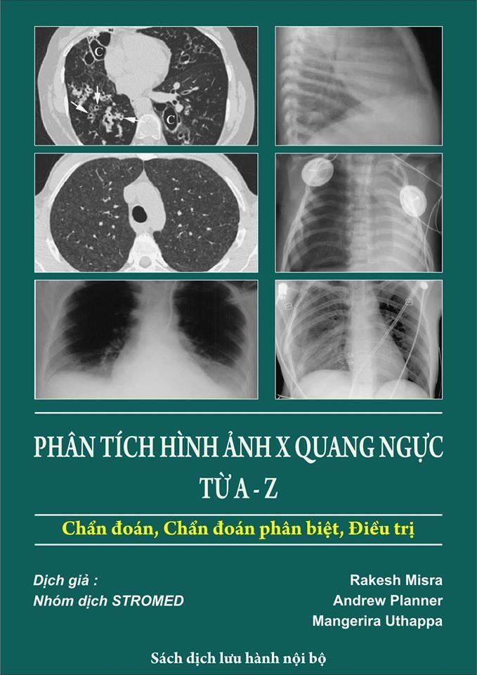 Sách phân tích hình ảnh X quang ngực từ A đến Z