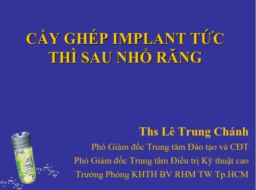Cấy ghép Implant tức thì sau nhổ răng