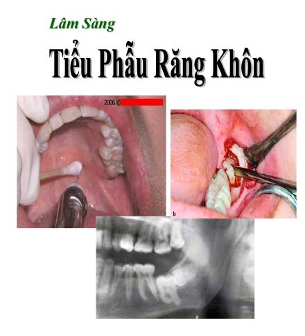 Sách Tiểu phẫu răng khôn