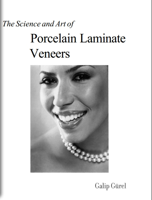 The science and Art of Porcelain Laminate Veneers (2003)
