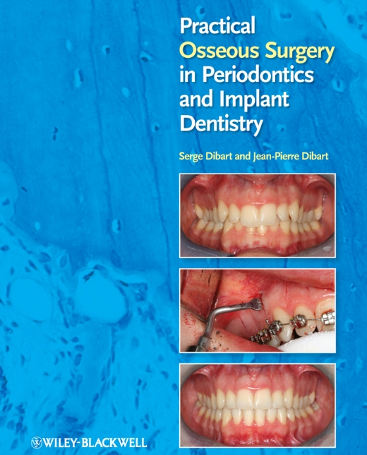 Practical_Osseous_Surgery_in_Periodontics_and_Im