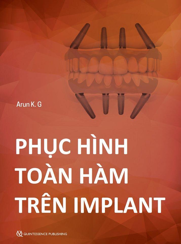 Sách phục hình toàn hàm trên implant