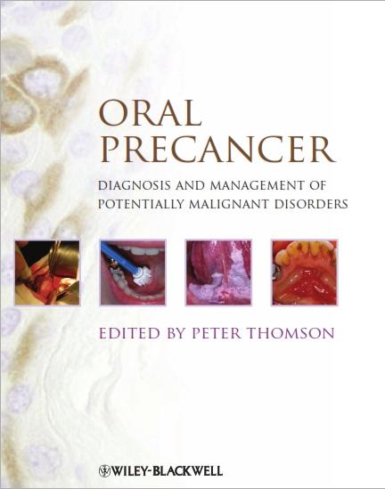 Oral_Precancer