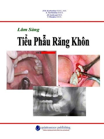 sach-tieu-phau-rang-khon
