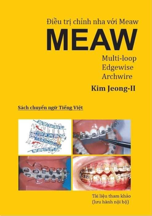 Sách điều trị chỉnh nha với meaw