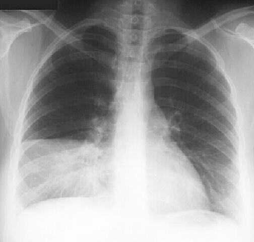 Viêm phổi mắc phải ở cộng đồng
