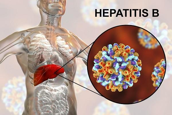 Khi nào điều trị đặc hiệu viêm gan B