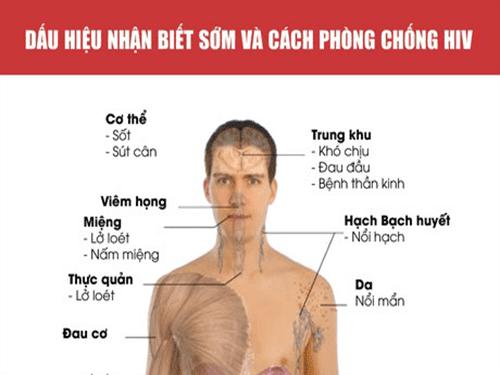 16 dấu hiệu khi nhiễm HIV dễ bỏ qua