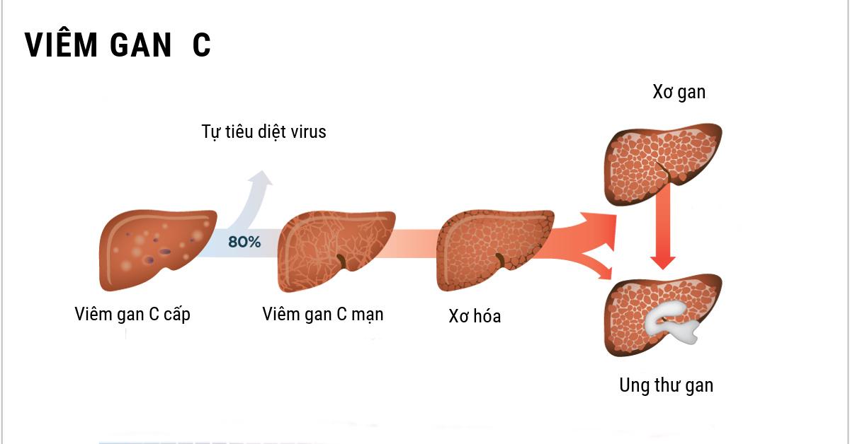 Chỉ định và điều trị viêm gan C