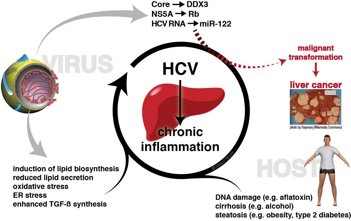 Viêm gan C cần làm những xét nghiệm nào?