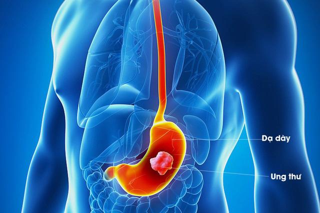 CA 72-4: Dấu ấn ung thư dạ dày