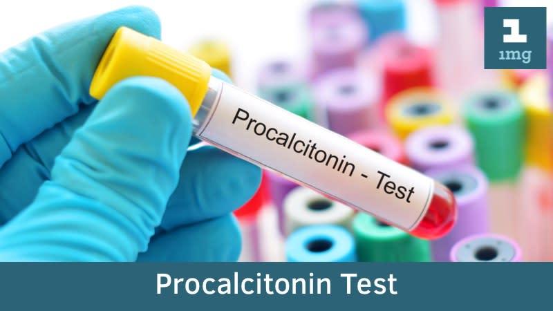 Xét nghiệm Procalcitonin (PCT) đánh giá tình trạng nhiễm khuẩn