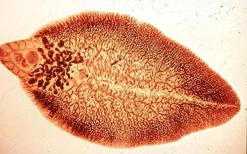 U gan do ký sinh trùng rất dễ nhầm với ung thư gan