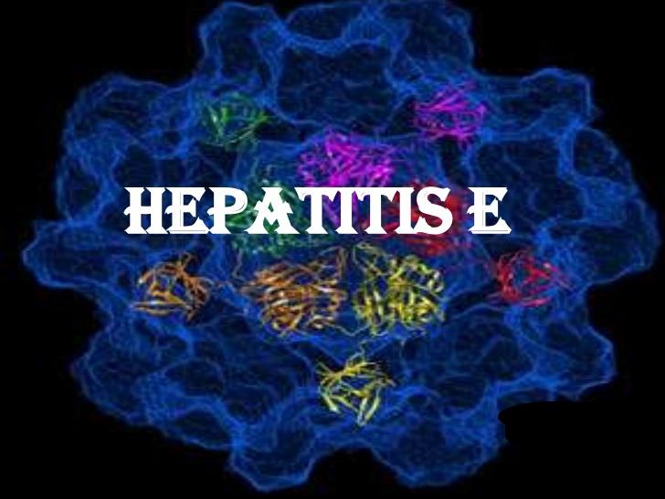 Phân biệt các loại virus viêm gan gây bệnh