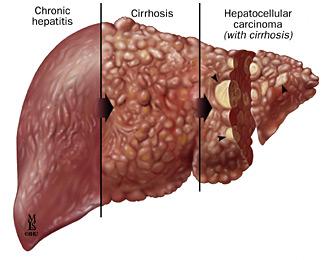 Các biến chứng nguy hiểm của virus viêm gan C