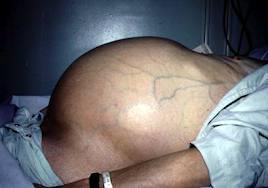 Fibrotest - xét nghiệm chẩn đoán sớm xơ hóa gan