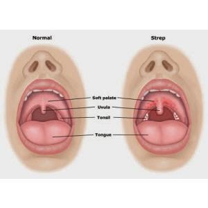 Viêm họng