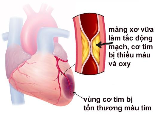 Dấu hiệu bệnh nhồi máu cơ tim