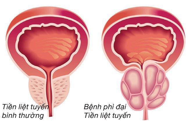 Đông y chữa bệnh tiền liệt tuyến hiệu quả