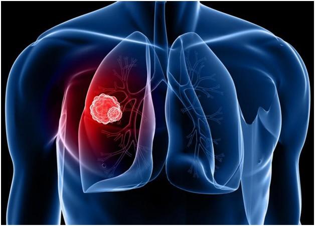 Phân loại bệnh ung thư phổi