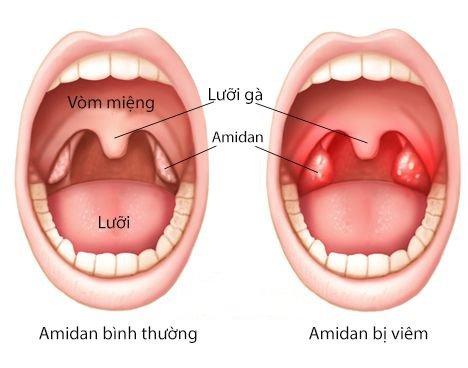 Rau trai vị thuốc hỗ trợ điều trị viêm họng hiệu quả