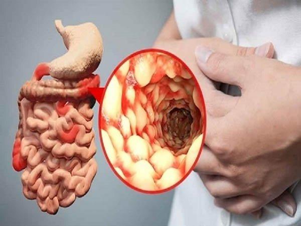 Đâu là các triệu chứng bệnh Crohn bạn cần biết?