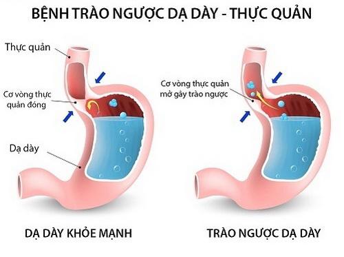 Trào ngược dạ dày - thực quản gây ra đau, tức ngực