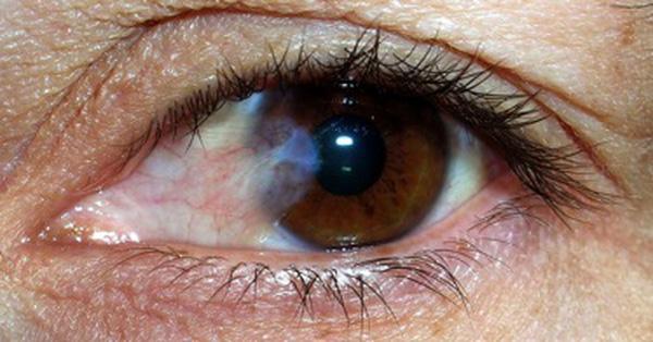 Bệnh mộng mắt - Những điều bạn cần biết khi điều trị mộng mắt
