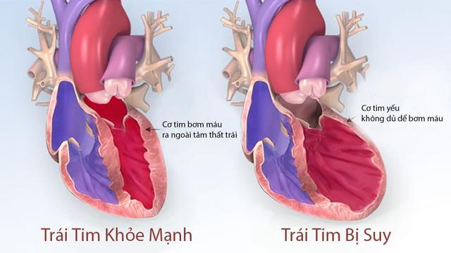 Đông y điều trị bệnh loạn nhịp tim
