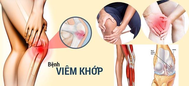 Những thói quen phòng bệnh đau khớp, đầu gối và hông, bàn tay