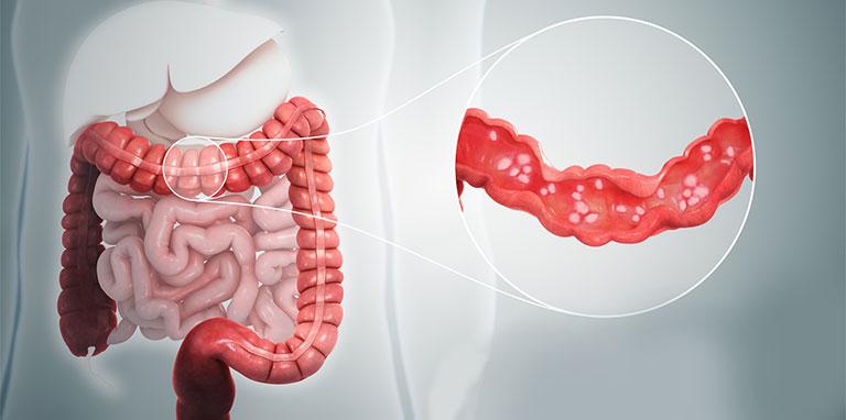 Bị bệnh đại tràng hơn 4 năm - Chữa như thế nào?