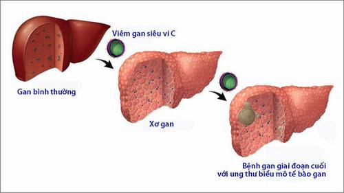 Đông y chữa bệnh viêm gan mạn tính