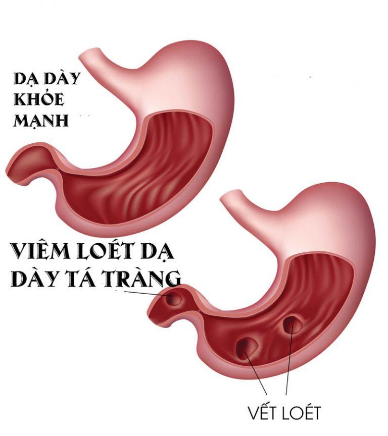 Đại cương bệnh loét tá tràng dạ dày