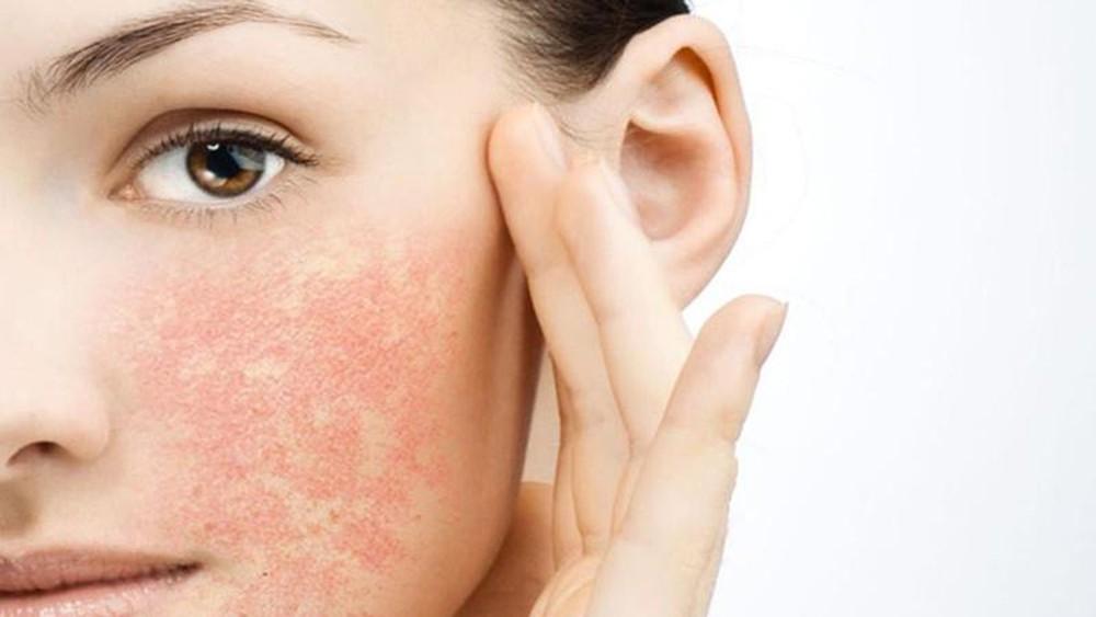KEM DƯỠNG LÀM DỊU DA QUÁ NHẠY CẢM TOLERIANE SENSITIVE LA ROCHE-POSAY |  Jolicosmetic.vn